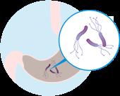 ピロリ菌感染胃がん