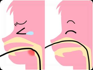 極細径の経鼻内視鏡によるオエッとなりにくい検査